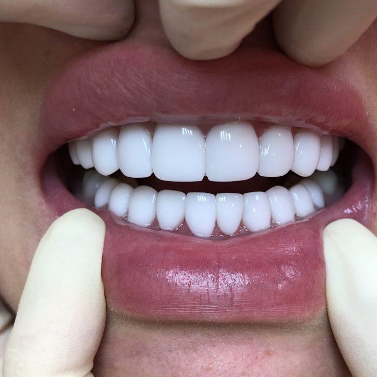 Зубы ПОСЛЕ